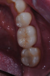 Occlusal aspect of mandibular crown.