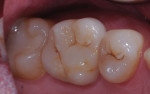 Occlusal aspect of maxillary crown.