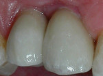 ATLANTIS Abutments were then torqued in and the Captek restorations were luted into place.