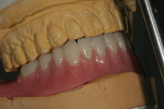 The processed and finished implant overdenture.
