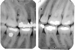Figure 11  (Case 3) Vertical bitewings from 1997. Note mild PARR of mandibular right first molar.