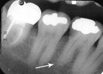 Figure 18  (Case 5) Periapical radiograph from 2004. Note PARR of distal root of the mandibular right first molar, caries in distal interproximal, and tooth treated with porcelain-fused-to-metal (PFM) crown.