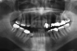 Figure 19  (Case 5) Panoramic radiograph from 2010 showing PARR limited to the distal roots of the mandibular right and mandibular left first molars.
