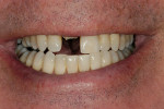Figure 1  Preoperative smile demonstrating average lip dynamic.
