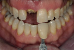 Figure 3  Base shade determination prior to treatment and tooth dehydration.