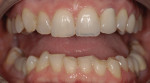Figure 1. Excessive wear could be seen on many teeth, along with an uneven plane of occlusion.