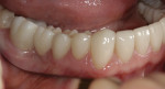 Figure 9. View of the three-unit bridge on the patient's right side showing natural-appearing pontic in the overall occlusal scheme.