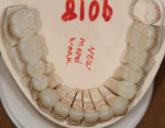 Figure 6. An occlusal view of the finished FCZ restorations on the master cast.