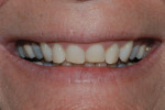 Figure 2. Worn, chipped, and retruded maxillary anterior teeth were evident in this close-up smile image.
