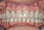 Figure 13. Postoperative photo showing excellent gingival health and symmetry.