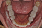 Figure 11. Lower arch after treatment completion.