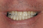 Figure 13  Final restoration 16 months post-cementation.