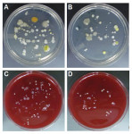 Figure 1. Representative images of aerobic bacterial colonies on Trypticase soy agar plates (A, B) and of anaerobic bacterial colonies grown on 5% sheep blood agar plates (C, D) from post-treatment bib clips at the hygiene clinic.