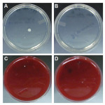 Figure 2. Representative images of aerobic bacterial colonies on Trypticase soy agar plates (A, B) and of anaerobic bacterial colonies grown on 5% sheep blood agar plates (C, D) from post-disinfection bib clips at the hygiene clinic.