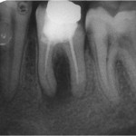 Figure 1  Preoperative radiograph with evidence of periapical and furcation pathosis.