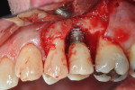 Figure 7. The surgical site after removal of granulomatous tissue and resection of the buccal threads of the implant.