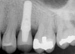 Figure 12. Twelve-month postoperative radiograph suggesting bone fill of the peri-implantitis defect.
