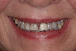 (Figure 1.) An unesthetic smile that was a result of years of wear and periodontal breakdown.