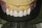 (Figure 3.) Esthetic parameters with Mondial teeth are easily verified using a Stratos mounting platform.