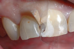 (Figure 12.) Isolation of tooth No. 8 in preparation for bonding and composite placement.
