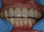 The patient expressed concerns about black triangles and her overall smile.