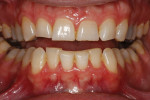 Severe attrition was evident on his anterior teeth and moderate attrition on his molars and first pre-molars.