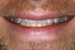 The patient shows a lack of anterior tooth display.