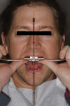 A Kois Dento-facial Analyzer was taken to capture and communicate the esthetic considerations of the maxillary arch.