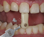 Tooth No. 9 was chosen by the patient as a reference for accetable aesthetics.
