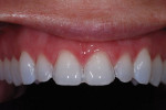 The technician should always be provided with photographs of preparations taken with the teeth wetted.
