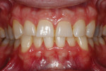 Pretreatment photographs suggested tooth structure would not have to be replicated in ceramic.