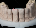 Dentine and transitional dentine powders were used to mimic typical internal dentine structures of teeth.
