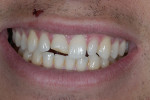 Figure 1   Patient presented with a fractured right central incisor.