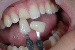 Figure 2  The body shade of composite was selected by using the Vitapan tooth shade guide and selecting a color that matched the center portion of the tooth. The dentin shade of composite was selected by matching the fractured exposed dentin.