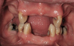 Figure 4  Structurally compromised teeth from large active carious lesions.