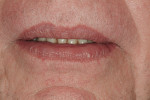 Figure 5  Lips in repose showing excessive display of lower anterior teeth.
