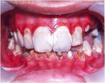 Figure 1  Intraoral view at first visit. Severe gingival inflammation and extensive tooth destruction can be seen.