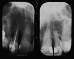 Figure 2  Pretreatment radiograph. Note severe vertical periodontal defect between the lateral incisors and adjacent teeth.
