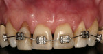 Figure 3  Beginning of orthodontic treatment. Note that anchorage was achieved by maxillary anterior teeth.