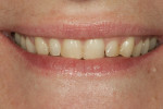 Figure 2 Full smile close-up, pre-treatment.