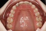 Figure 5 Upper arch, pre-treatment, with bonded retainers on lingual surfaces.