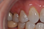 2-mm notch in the neck of the tooth (on Nos. 5 and 6) repaired with N'Durance Dimer Flow.