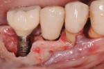 Figure 8 Immediate provisional restoration No 29 implant.