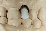 Figure 7 The facial incisal edge was layered with veneering ceramic.