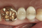 Figure 18 Occlusal view of the hybrid abutment restoration after sealing of the access hole.