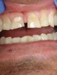 Figure 1 Patients can experience transforming their smile in one visit.
