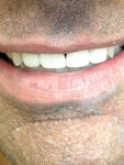 Figure 2 Patients can experience transforming their smile in one visit.