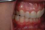 The shade match of the porcelain restorations was excellent when compared to the patient's natural teeth.