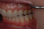 The tissue around the implant-supported crown No. 11 was pink and healthy and exhibited good light transmission at the gingival margin.