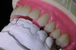 The wax behind the upper canine is an indentation of the opposing canine for stability and anterior stop.